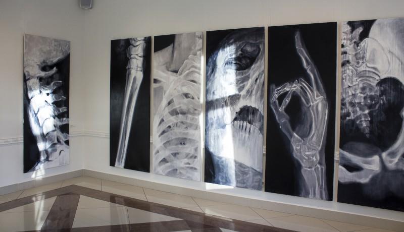 Dita Lūse. Gaismas Anatomija